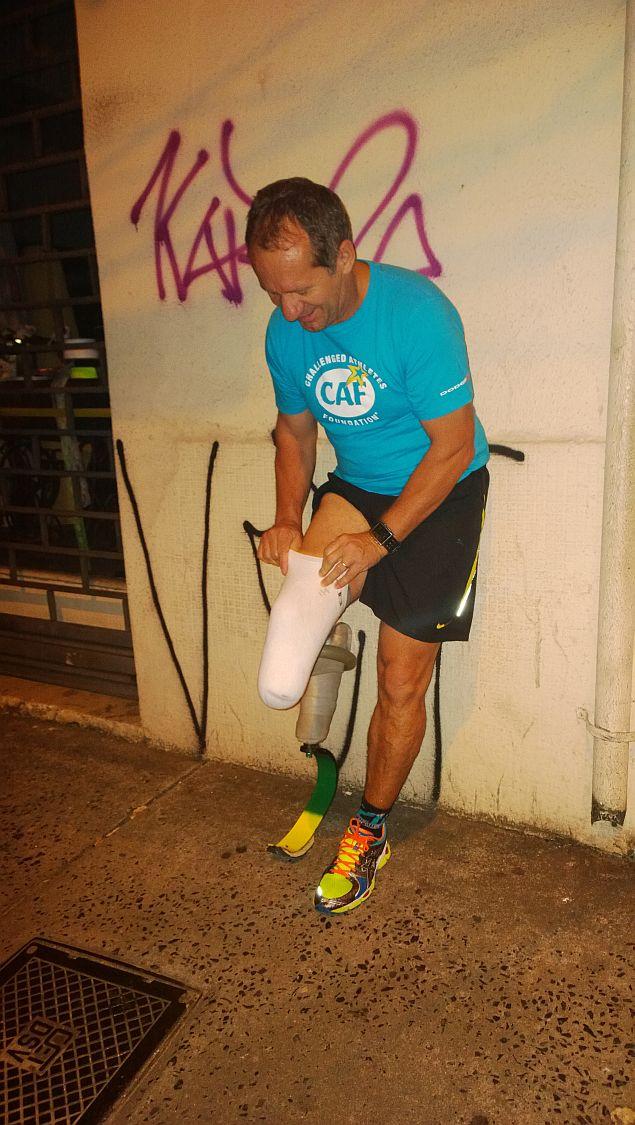 1 rearrumando a protese